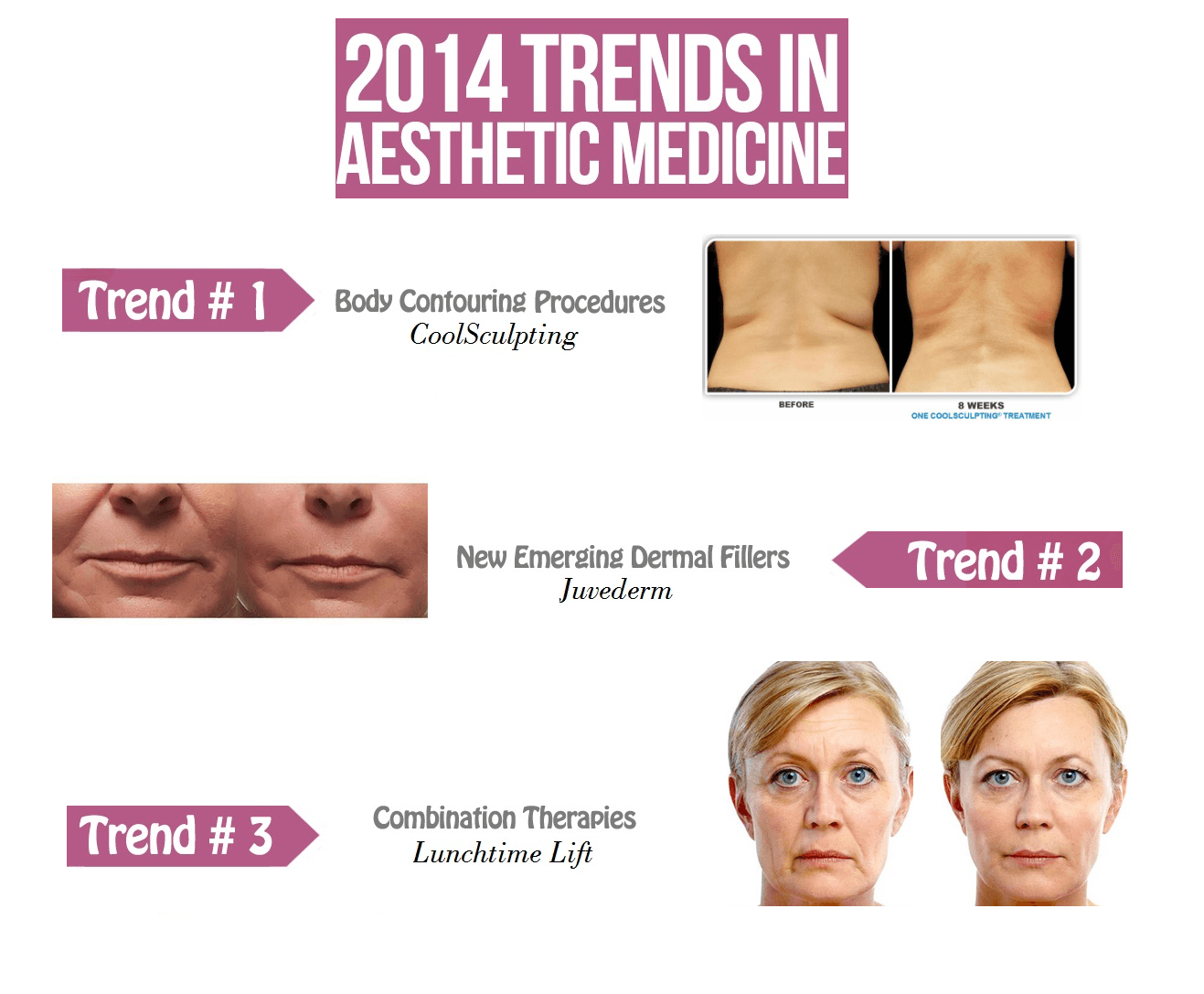 2014 trends in cosmetic medicine coolsculpting juvederm