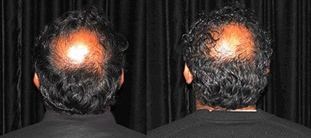 Before and after PRP hair loss therapy | North Vancouver PRP Hair Loss Therapy | Afterglow Clinic