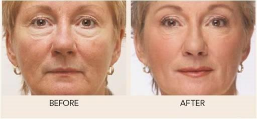 Soft Lift™ Nonsurgical Facial Rejuvenation Before and After | North Vancouver Soft Lift Nonsurgical Facial Rejuvenation