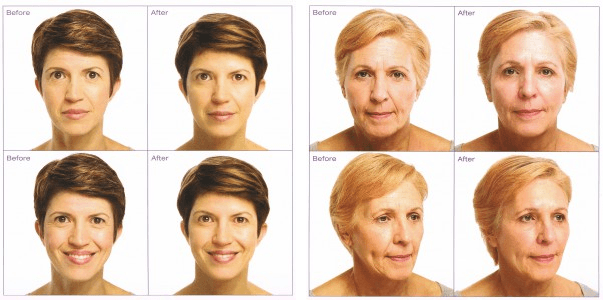 Soft Lift™ Nonsurgical Facial Rejuvenation Before & After | North Vancouver Soft Lift Nonsurgical Facial Rejuvenation