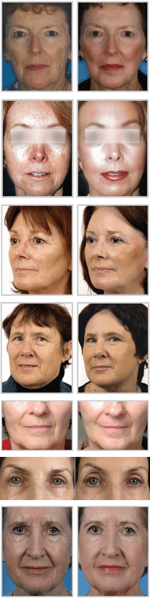 Before and after laser skin resurfacing