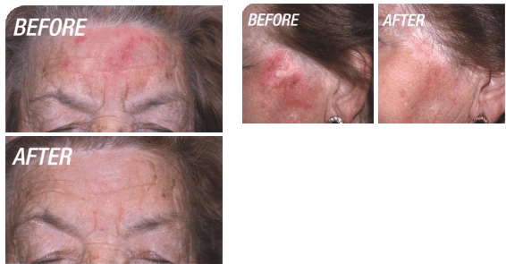 Before and after photodynamic therapy | North Vancouver Photodynamic Therapy | Afterglow Clinic
