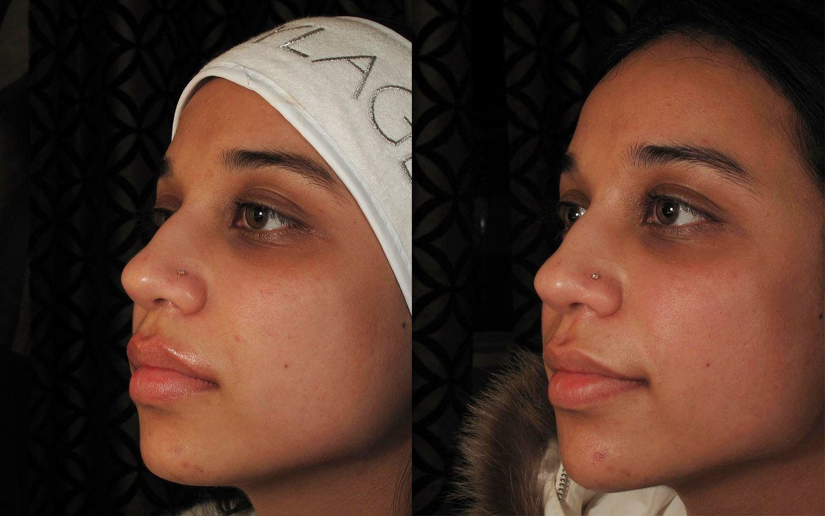 Before and After Radiesse treatment