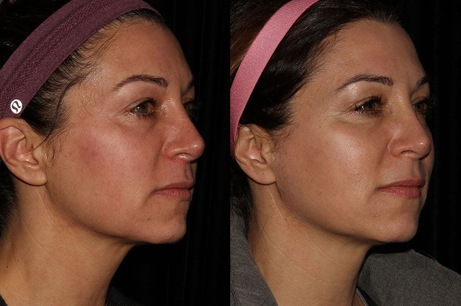 Before and after profractional