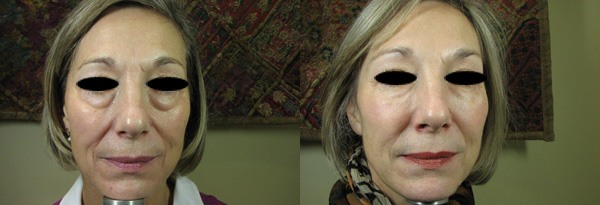 before and After under-eye bag treatment
