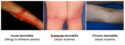 Types of eczema | North Vancouver Eczema Dermatitis Treatment | Afterglow Skin Care Clinic