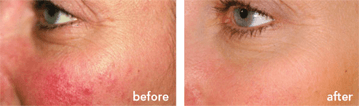 Skin Conditions | North Vancouver Skin Care for Skin Conditions | Afterglow Clinic