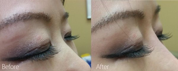 Before and after Nonsurgical Nose Job