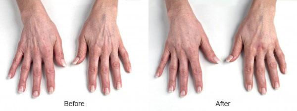 RADIESSE® for hands Before and After   North Vancouver RADIESSE Dermal Fillers   Afterglow Clinic