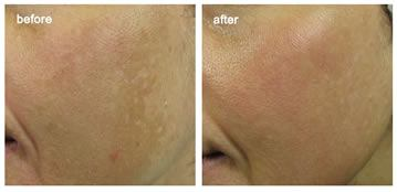 Before and after melasma treatment