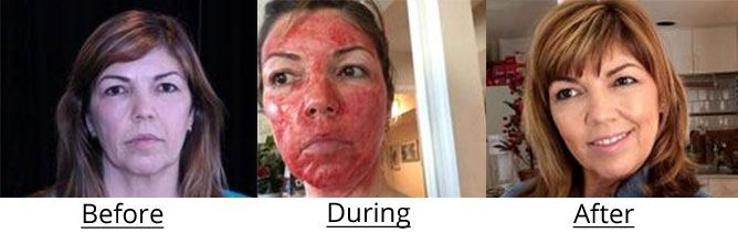 Before, during, and after vampire facial | North Vancouver Vampire Facelift | Afterglow Skin Clinic