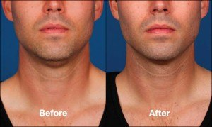 Before and after double chin treatment male