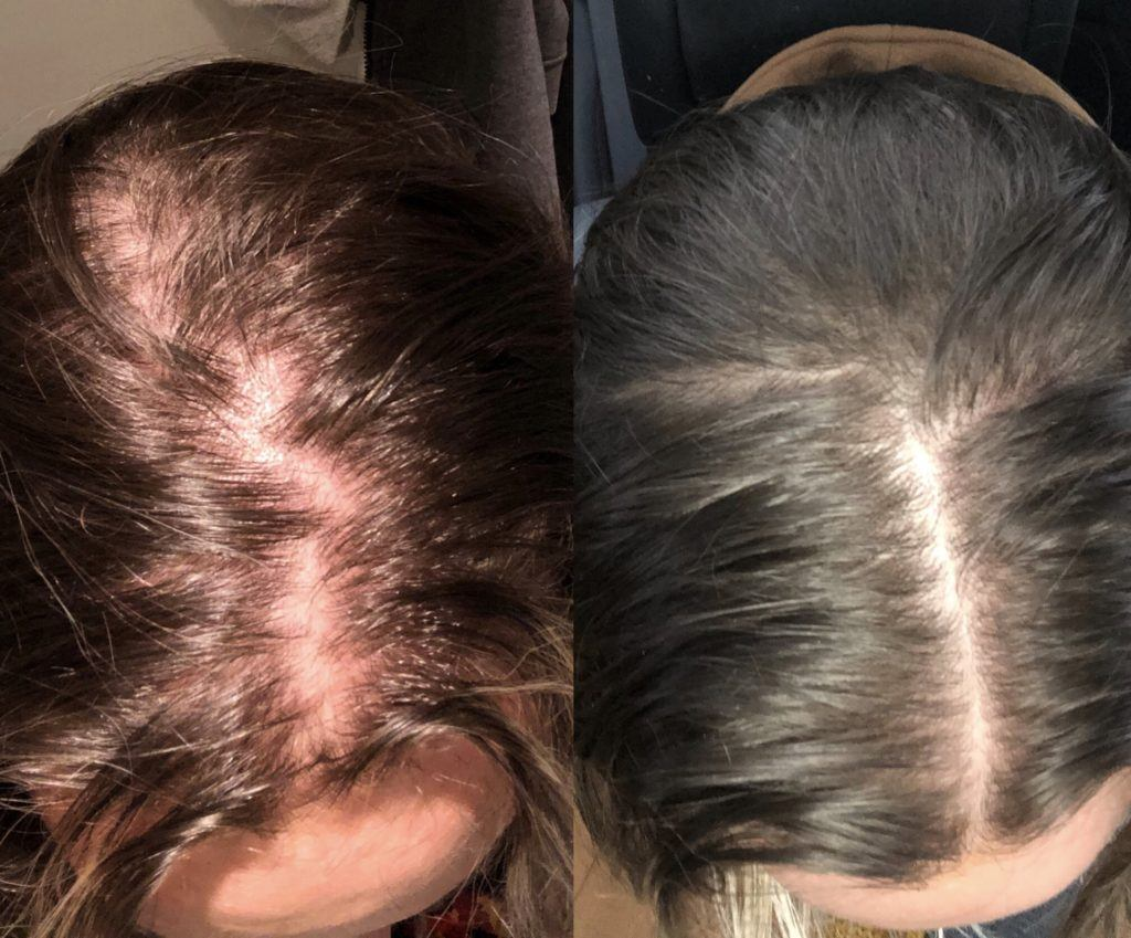 Before and after PRP hair loss therapy female