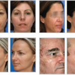 Before and after microlaser peel
