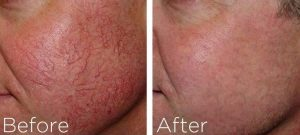 Before and after spider vein treatment