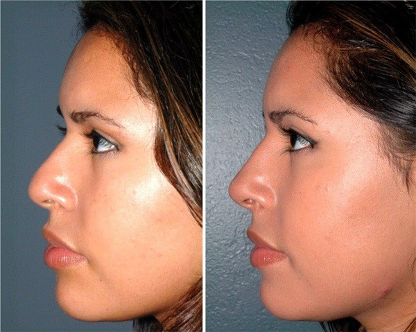 Before and after nose